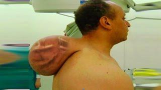 getlinkyoutube.com-World's Largest Neck Cyst?  Full Case Study, Giant Tumors & Hibernoma