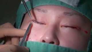 getlinkyoutube.com-高須クリニック  下まぶた逆さまつ毛修正手術、たれ目形成(グラマラスライン、下眼瞼下制術) 手術動画② 内部処理、皮膚縫合  美容整形外科動画
