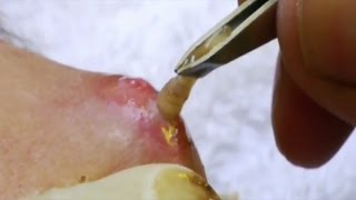 getlinkyoutube.com-Top 5 Parasite Removals  Botfly