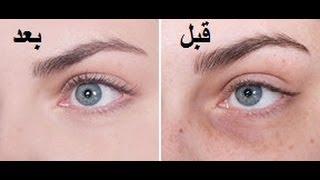 getlinkyoutube.com-طريقة سريعة للتخلص من الهالات السوداء والانتفاخ تحت العين وعلامات الشيخوخة
