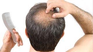getlinkyoutube.com-झड़ते बालों के लिए 5 चमत्कारी घरेलु उपचार : Home Remedy for Hair Loss in Hindi