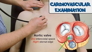 getlinkyoutube.com-Cardiovascular Examination - OSCE Guide (New Version)