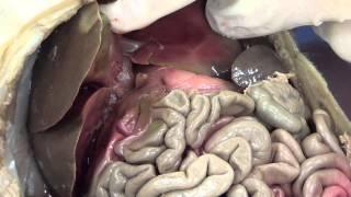 getlinkyoutube.com-Fetal Pig Dissection Part 2)