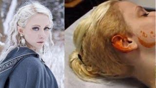 23 Yr Old Has Surgery To Shape Her Ears Like An Elf