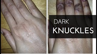 getlinkyoutube.com-Dark Knuckles: How I Got Rid of Them For Good!