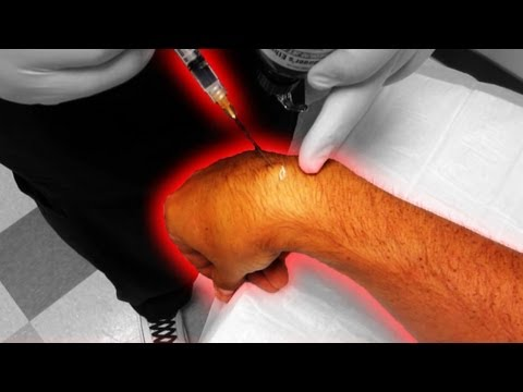 Removing a Cyst from my Wrist