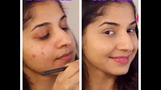 getlinkyoutube.com-How to cover pimples | acne skin