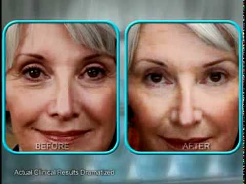 Stem Cell Therapy Cream: Less Wrinkles In 30 Days or Less Anti-Wrinkle Cream That Works