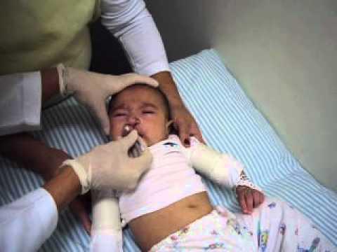 Enfermagem: Higiene oronasal em bebê com fissura labiopalatina (depois da cirurgia)