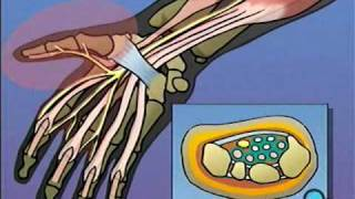 getlinkyoutube.com-Carpal Tunnel Syndrome Repair Surgery PreOp® Patient Education Feature
