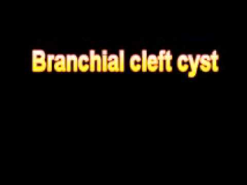 What Is The Definition Of Branchial cleft cyst Medical Dictionary Free Online