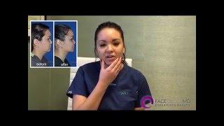 getlinkyoutube.com-FaceologyMD Buccal Fat and Chin/Neck Liposuction Testimonial