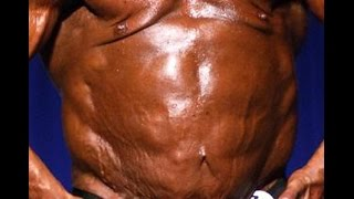 getlinkyoutube.com-New Bodybuilding Disease: Lennyism
