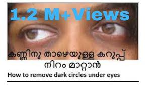 getlinkyoutube.com-കണ്ണിനു താഴെയുള്ള കറുപ്പ് നിറം മാറാന്/How to remove dark circle under eyes/No.126