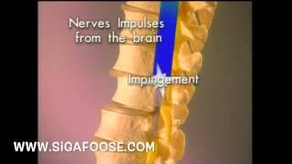 getlinkyoutube.com-Chiropractic X-Ray Report