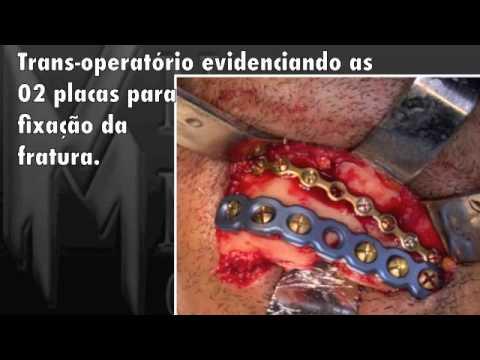 Fraturas complexas de face,ney medeiros,fracture face complex,Maxilo facial