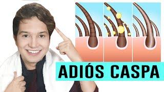 getlinkyoutube.com-COMO ELIMINAR LA CASPA NATURALMENTE CON REMEDIOS CASEROS | Vinagre Blanco | Andy Zaturno