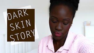 getlinkyoutube.com-MY DARK SKIN STORY Pt 1 // ENCOUNTERS of RACIAL ABUSE, ANXIETY & TEARS. (LONDON, UK)