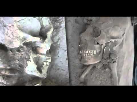 Βρέθηκαν «εξωγήινα» κρανία σε σκελετούς παιδιών