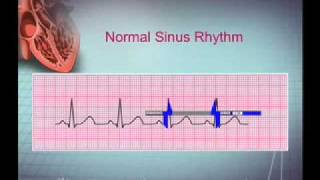 getlinkyoutube.com-Intro EKG Interpretation Part 1