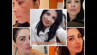 getlinkyoutube.com-Diário: Tratamento contra melasma #1