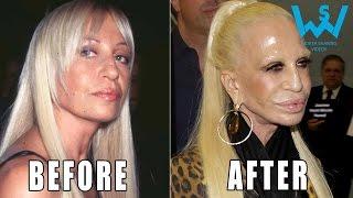 getlinkyoutube.com-Worst celebrity plastic surgery disasters | Plastic surgery fails
