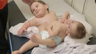 getlinkyoutube.com-Conjoined Twins Erika and Eva Separated