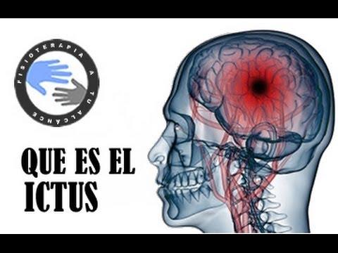 Ictus o infarto cerebral, que es y como se produce  /  Fisioterapia a tu alcance