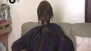 getlinkyoutube.com-Vidéo Fatim Ndiaye atteinte de gigantomastie