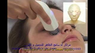 getlinkyoutube.com-RF 1 عميات تجميل نضارة البشرة و شد الوجه