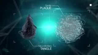 Beta amyloid and Tau proteins (transglutaminase substrates) LECMA