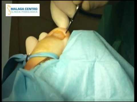Cirugía de onicocriptosis (Uña encarnada). Ingrown toenail surgery. Winograd modificado