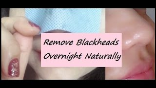 getlinkyoutube.com-How to Remove Blackheads Overnight Naturally