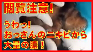 getlinkyoutube.com-閲覧注意!ニキビ・膿ニュルニュル!オッサンのほっぺから大量の膿!こんなアテロームが顔に出来たらショックで外に出たくないわ。CYST PIMPLE POPPING