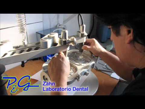 Laboratorio Dental PyG Zahn - Protesis dental -  zirconio