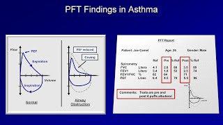 getlinkyoutube.com-Asthma and COPD: Stable Disease - Diagnosis and Management