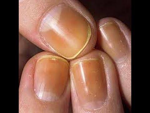 Applicazione di un chistotel da un fungo di unghie