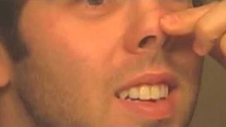 Scot's Amazing Nose Zit   (It Refills)