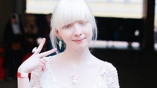 getlinkyoutube.com-【女神】美しすぎるアルビノの少女、 ナスチャ・クマロヴァとは!!