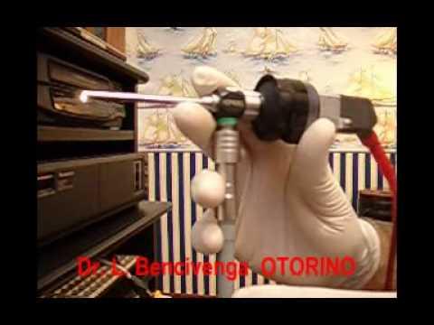 Otorino Ostia Ladispoli (Bambini-adenoidi-raffreddori-cattiva respirazione ed otiti)