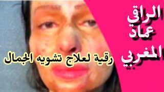 getlinkyoutube.com-رقية تشويه الجمال بسبب سحر او عين . الراقي عماد المغربي