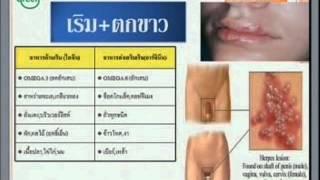 getlinkyoutube.com-น้ำมันมะพร้าวกับการรักษาโรค2.1.wmv