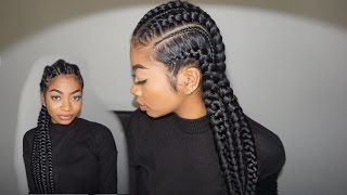 Feed in Cornrows!: Maintenance, Itchy Scalp, Sleeping Routine