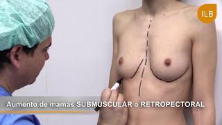 getlinkyoutube.com-AUMENTO DE MAMAS - Dr Marín - Instituto Laser Barcelona