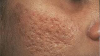 getlinkyoutube.com-DermTV - Removing Acne Scars [DermTV.com #61]