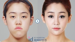 getlinkyoutube.com-[id hospital review] before and after plastic surgery in korea(v-line, eye, nose and fat graft)