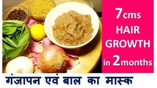getlinkyoutube.com-7cm in 2month HAIR GROWTH | काले लम्बे घने बालों के लिए | Stop HAIR LOSS - Baldness Hair Mask