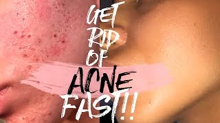 How to Get Rid of Acne & Acne Scars FAST!!