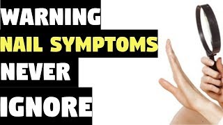 Nail Symptoms and What It Means for Your Health! | Nail Symptoms