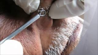 getlinkyoutube.com-New Year 2016 Blackheads